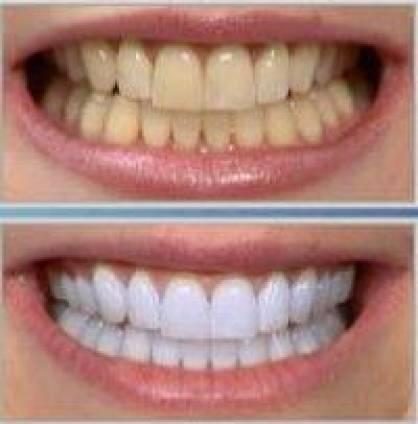 Clareamento Dentario Saiba Antes De Fazer Beleza Masculina