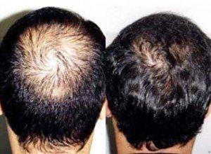 Resultado do microimplante