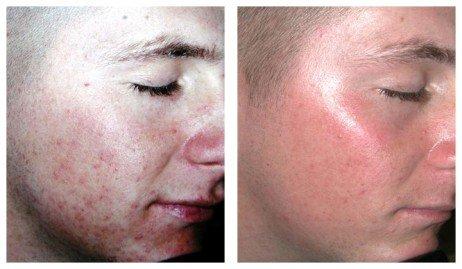 Como Eliminar Cicatrizes Beleza Masculina