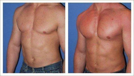Como cuidar de um peito depois da cirurgia plástica