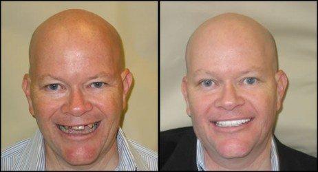 Antes e depois implante