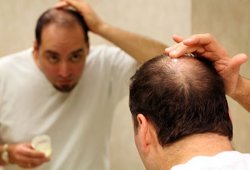Evitando perda de cabelo