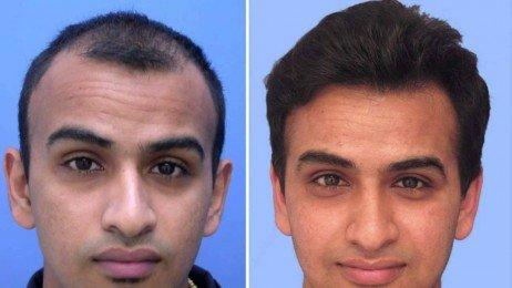 Resultado de imagem para transplante de cabelo