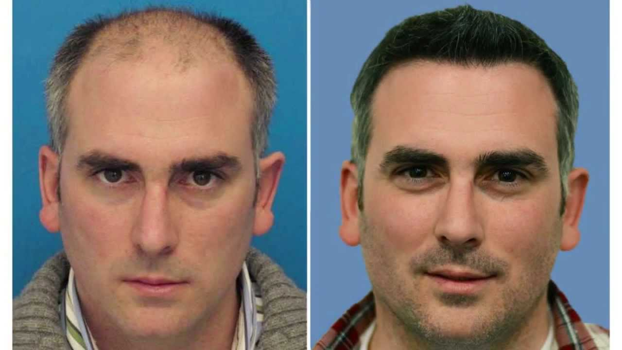 Resultado de imagem para Enxertos de cabelo
